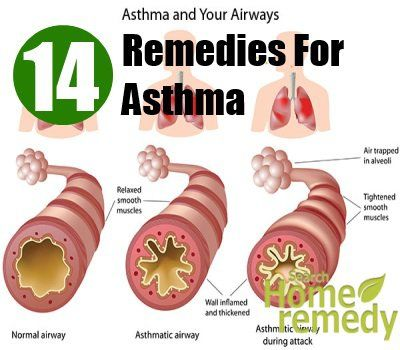 Over 9% of children and 7% of adults suffer from asthma in the United States of America. Over three thousand out of them die every ...