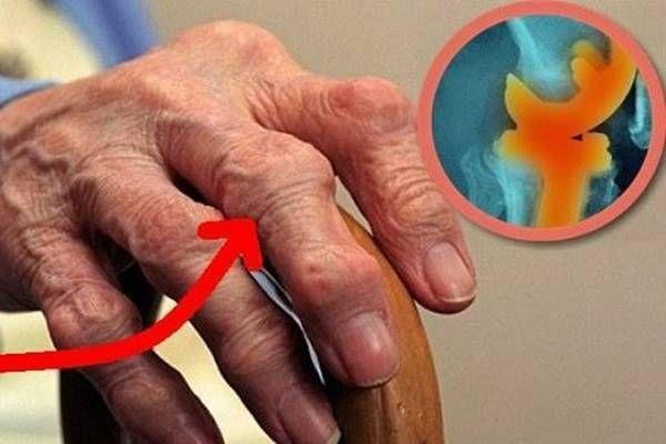 Ha ezt a keveréket fogyasztod, 1 nap alatt megszabadulhatsz a láb-és ízületi fájdalmaktól!