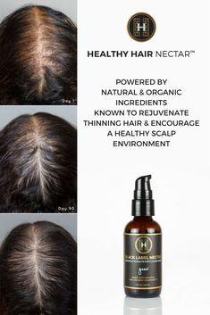 grow hair | thin hair | thinning hair treatment | natural hair treatment | before and after | results | hair growth |