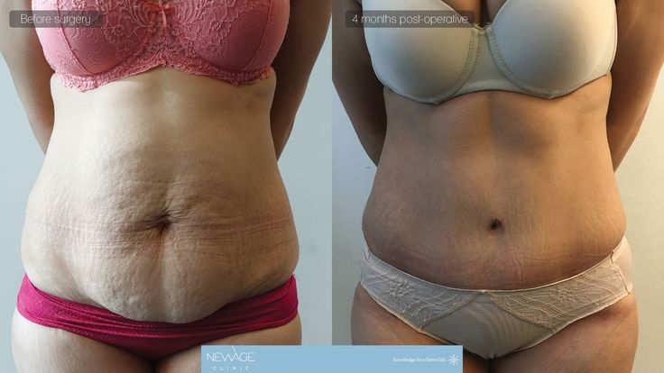 Tummy Tuck Surgery performed by Ozge Ergun, MD - (4 months post op. photos)   #tummytuck #mastopexy #PlasticSurgery #Aesthetics #beauty #estética #cirugíaplástica ‬#estetica #chirurgiaplastica #Ästhetische #plastischeChirurgie #chirurgieplastique #Schönheit #ринопластика #breast #Busen #brust #الثدي #réductiondepoitrine #Brustverminderung #breastsurgery #BreastAugmentation #brustvergroesserung #유방 #유방확대술 #Bröstförminskning #BreastAugmentations #medicaltravel
