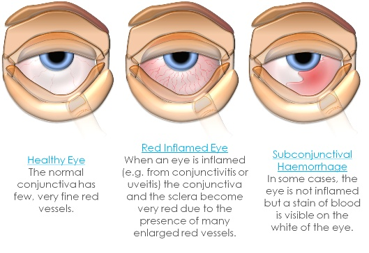 "Causes of red eye - ""go suck"": Glaucoma, Orbital disease, Scleritis, Uveitis, Conjunctivitis, Keratitis"