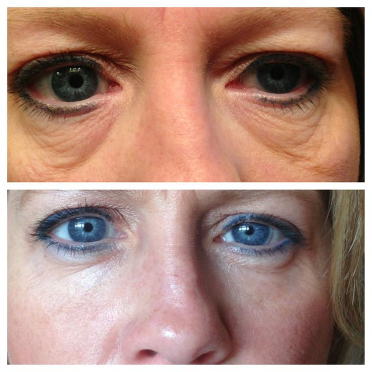 Check out these 60 day Results. Eyesag fixer NeriumAD