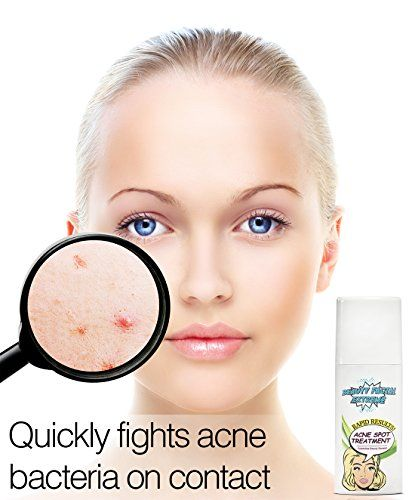 Acne Spot Treatment Serum - Quickly fights acne causing bacteria on spot to treat acne breakouts, pimples, whiteheads and blackheads. Dissolves away pore clogging oils without over drying your skin.