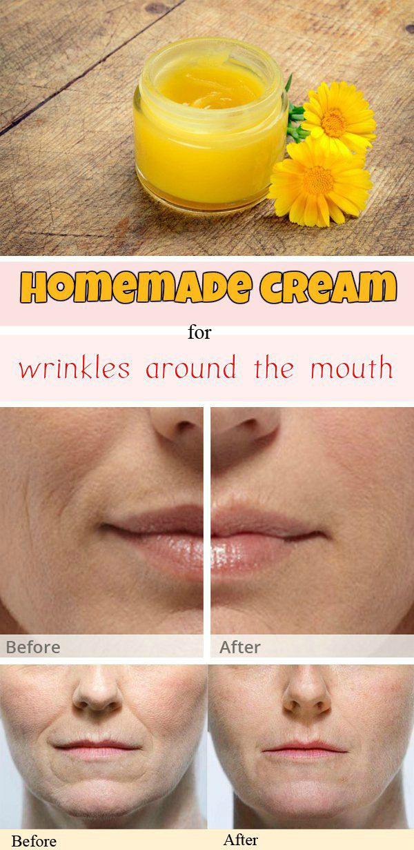 Homemade cream for wrinkles around the mouth
