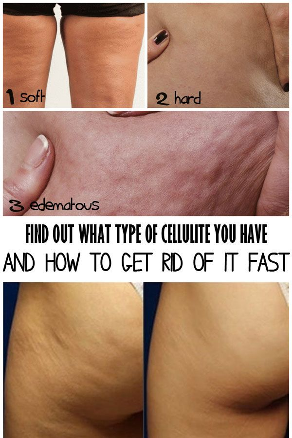 The first step before facing the cellulite problem is to know what type of cellulite you have and how to correctly begin your treatment!
