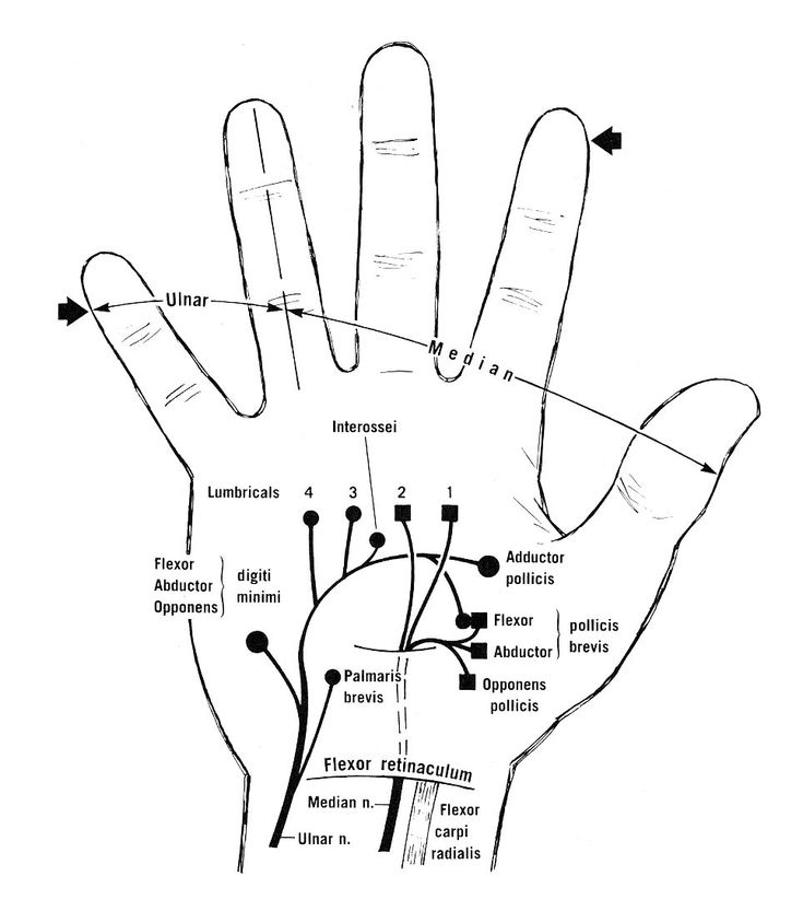 115 best OT /hand therapy images on Pinterest | Physical therapy ...