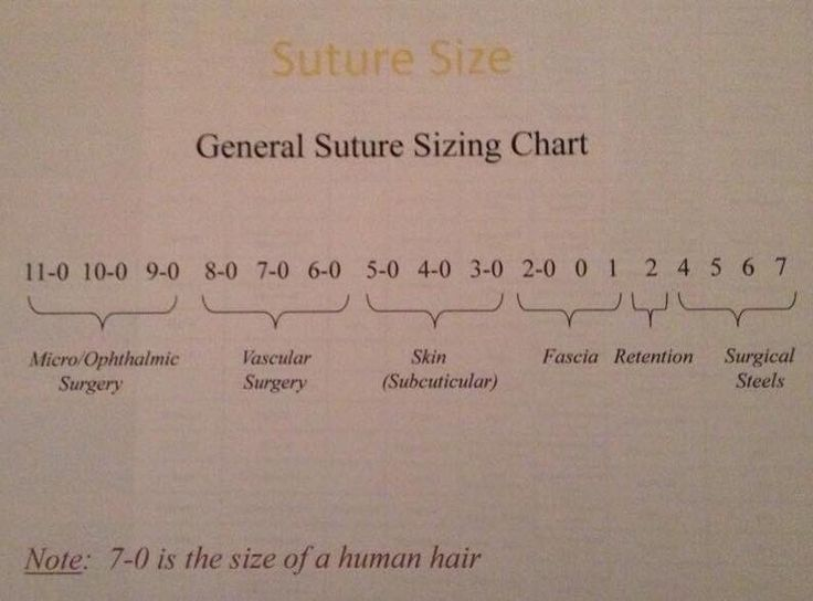 General suture size guide