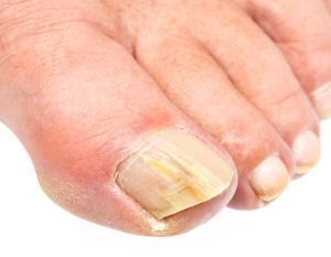 Home remedies for nail fungus | We Know How To Do It