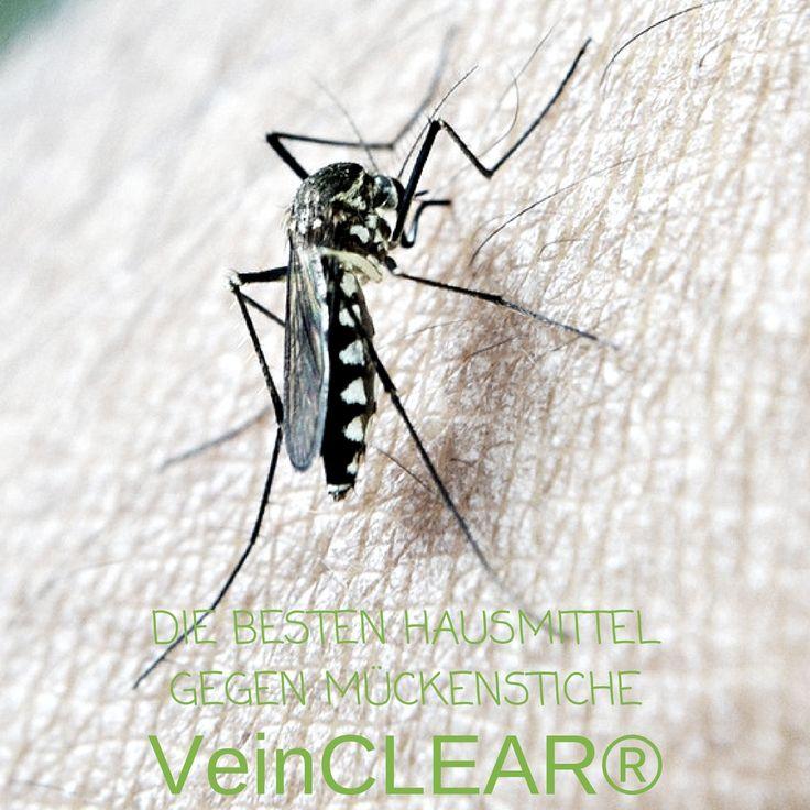 Die besten Mittel gegen Mückenstiche  Oh nein! Schon wieder ein juckender Mückenstich und nun schwillt er auch noch an!  Wie kann man den Juckreiz und die Schwellung am besten lindern?  VeinCLEAR® verrät euch die besten Hausmittel gegen Mückenstiche. ;)  Die Zwiebel.  Die entzündungshemmende Wirkung der Zwiebel mindert ....  #VeinCLEAR #Mücken #Mückenstich #Tipps #stechmücke #schwellung #rötung #hausmittel #zwiebel #kühlen #kühlung #allergie #heilen #lindern #juckreiz #kratzen