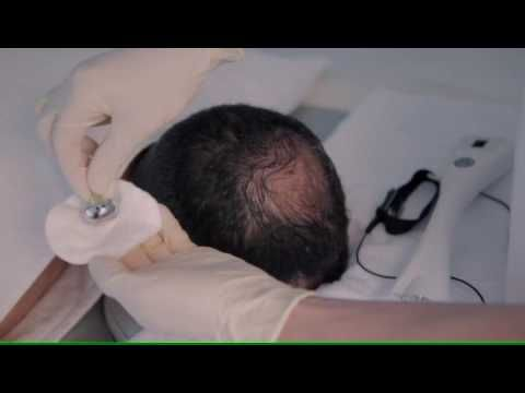 Fusion Mesotherapy - Fractional Meso Hair Treatment