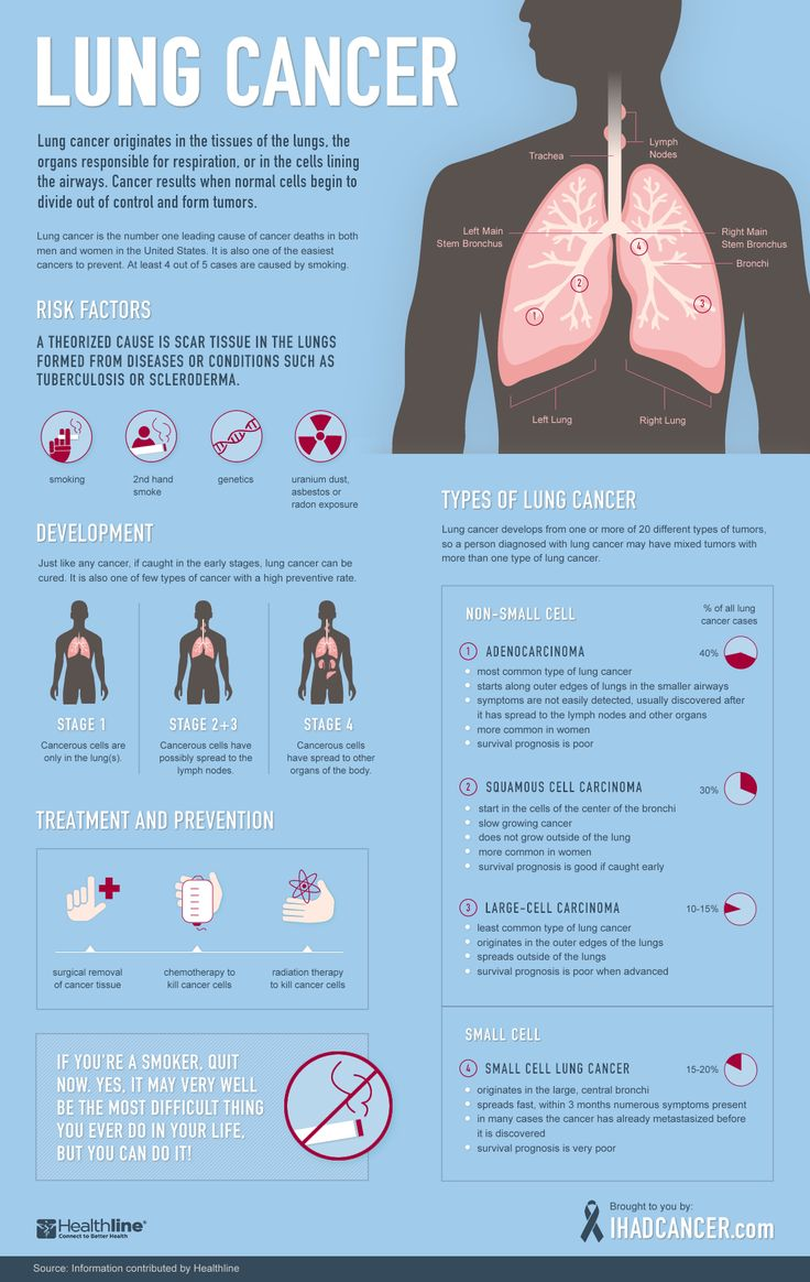 Lung Cancer: A Visual Guide