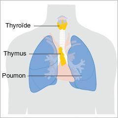 Des chercheurs français, dont les travaux sont publiés dans le Journal of Clinical Investigation, ont identifié une raison pour laquelle les femmes sont plus susceptibles que les hommes d'être atteintes de maladies auto-immunes telles que la sclérose en plaque, l'arthrite rhumatoïde, la thyroïdite, le lupus ou la myasthénie.