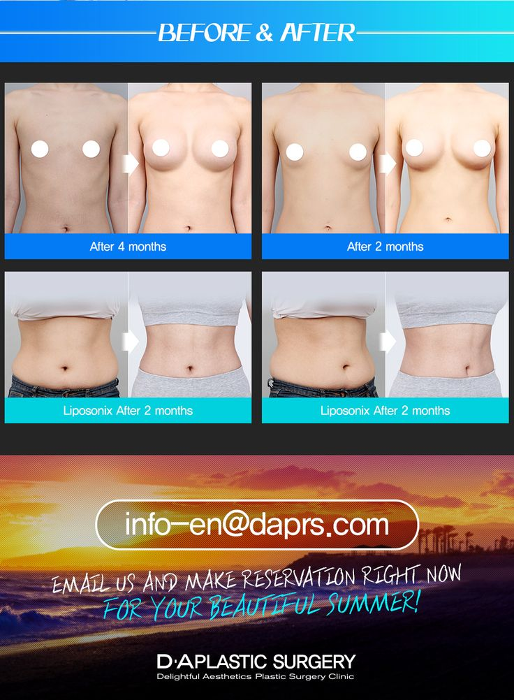 Before and after photos of DA patients! Enquiry/Make appointments email: infor-en@daprs.com  #DAplasticsurgery #pasticsurgery #koreaplasticsurgery #breastsurgery #breastimplant #summerbody #summer #body #korea #koreabeauty #koreacosmetic #cosmeticsurgery #teardropbreast