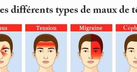 Les maux de tête (céphalées) sont des douleurs très courantes ressenties au niveau de la boîte crânienne.......DOCUMENT.....
