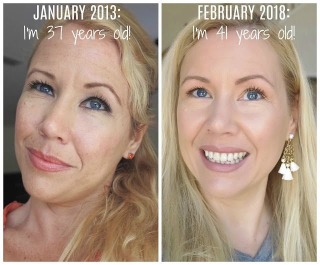 Why My Skin Looks Better With 41 Than 37 Anti Aging Skin Products Anti Aging Skin Care Natural Skin Care