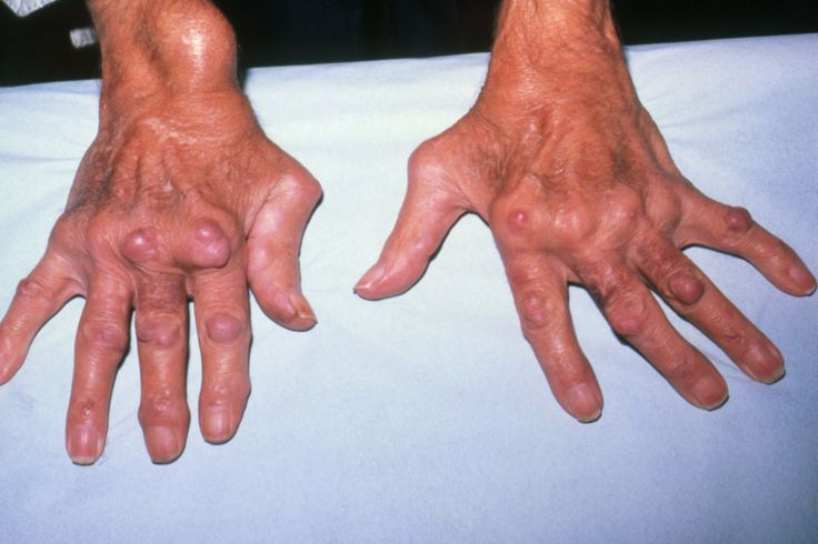 Rheumatoid nodules usually occur in active cases of rheumatoid arthritis. What is the significance of finding a rheumatoid nodule and where do they typically develop?