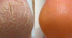 Mutfaktaki İki Malzeme İle Topuk Çatlaklarından Kurtulun