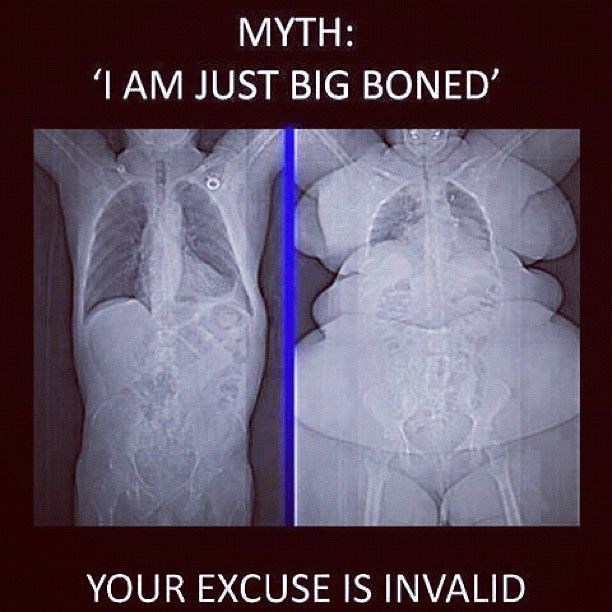 I hear people make this excuse all of the time! Myth busted and excuse removed. Now, believe in yourself and make a change!: Laughing, Instagram, Bones Myth, Excuses Anymore, Body Fit, Funny, Big Bones, Healthy, Human Skeletons