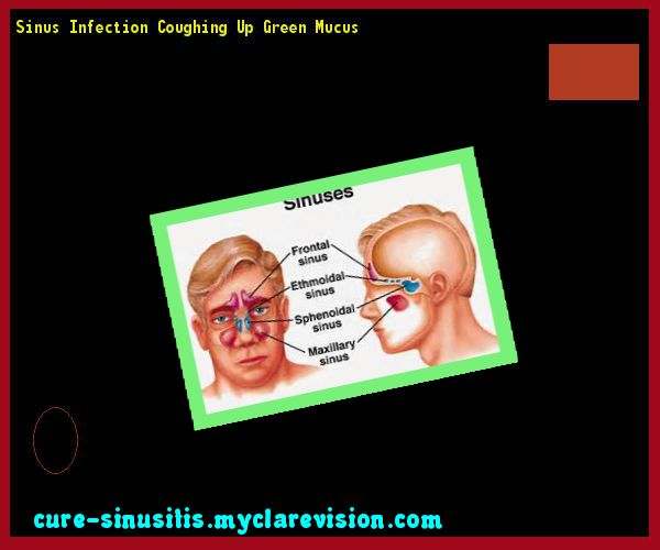 Sinus Infection Coughing Up Green Mucus 214735 - Cure Sinusitis