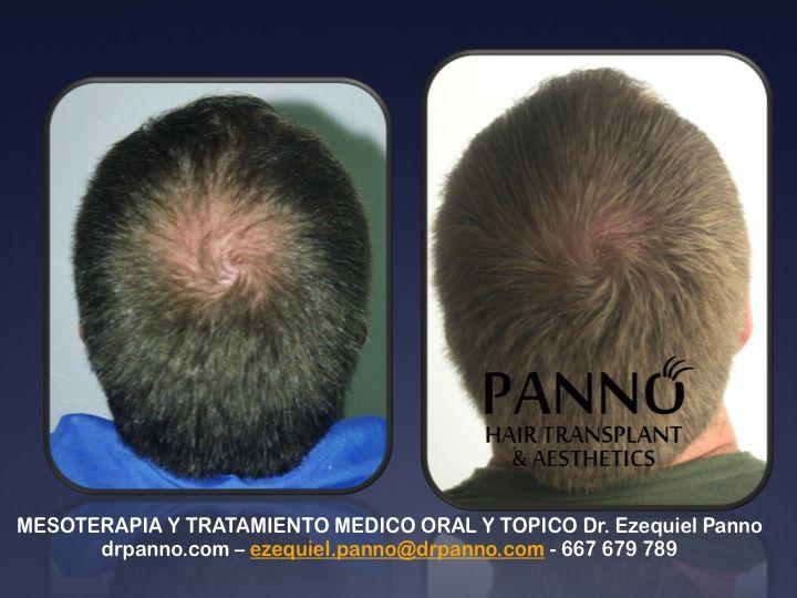 se te ve el cuero cabelludo? recupera densidad y calidad de tu propio pelo con la Terapia Regenerativa Antialopecica del Dr. Panno