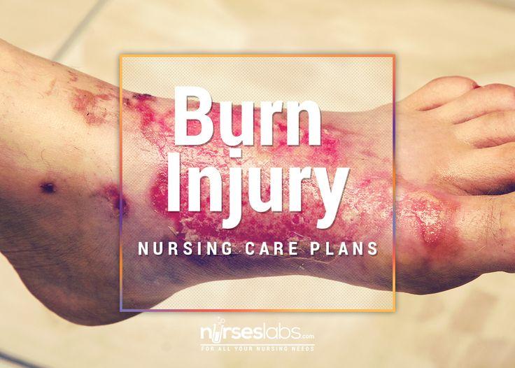 Reaction paper on critical care nursing