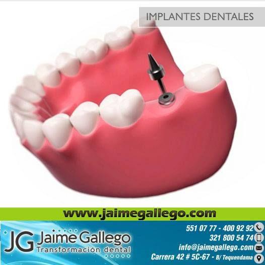 Odontología en Cali #Cali #Odontologiaencali #Colombia