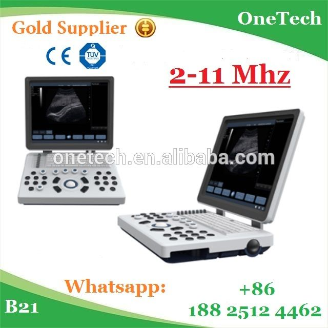 Thriving ultrasound scanner for pregnancy / portable ultrasonic machine for abdominal / low price laptop ultrasound B21