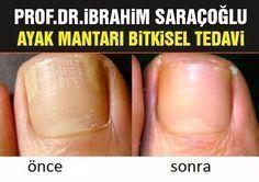 Ayak Mantarı Evde Bitkisel Tedavi; Prof.Dr. İbrahim Saraçoğlu tarafından ayak mantarı tedavisi için tavsiye edilen karışım sayesinde mantar oluşumuna neden olan virüslere karşı cildinize doğal bir koruma sağlayabilirsiniz.
