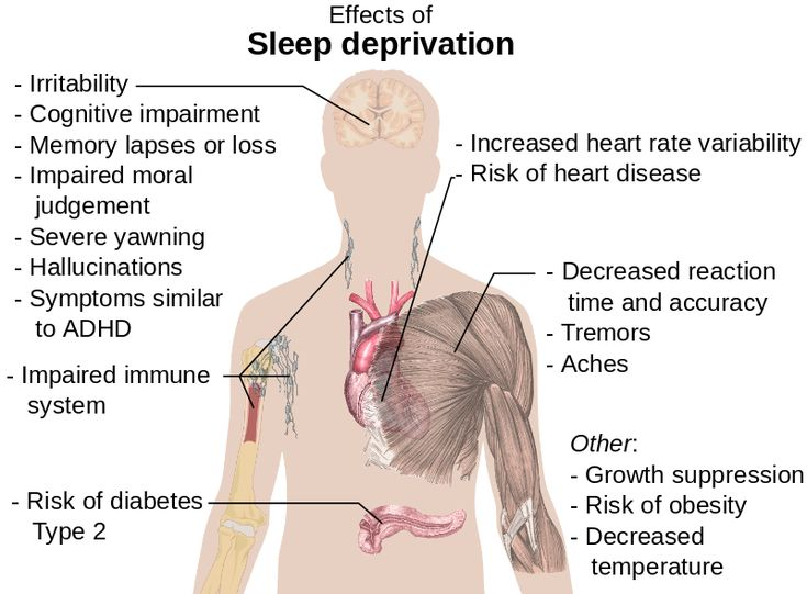 Effects of sleep deprivation.