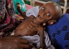 Resultado de imagen para niños desnutridos