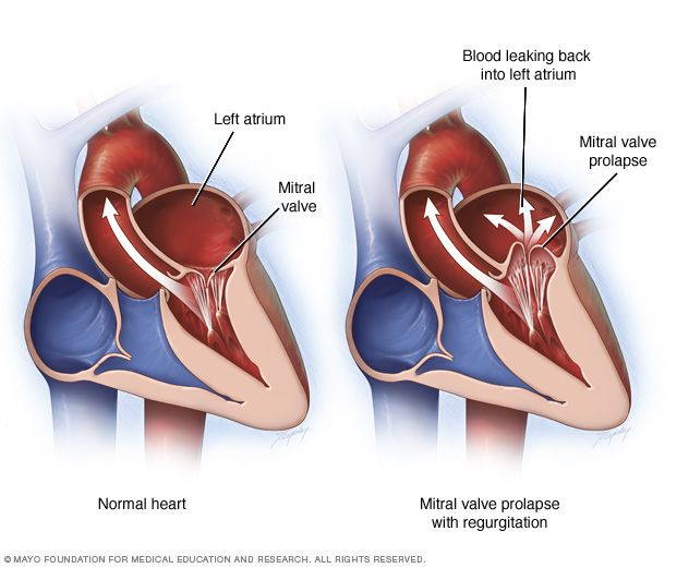 Mitral valve prolapse and regurgitation