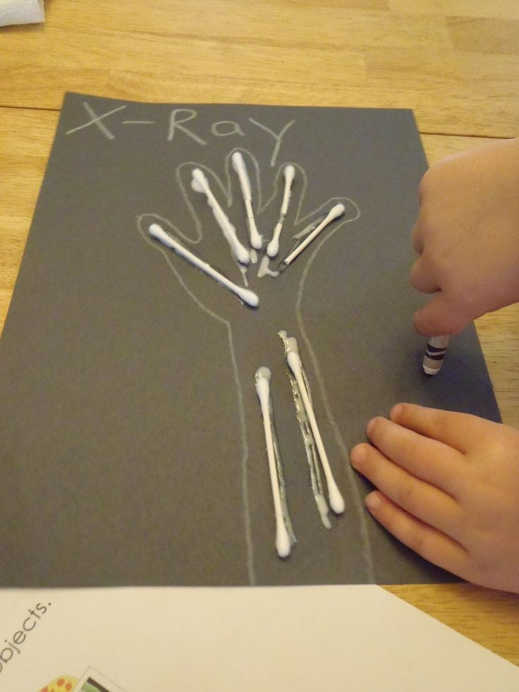 Letter X - X Ray Thematic Unit for PreSchool and Early Kinder and cute crafts.
