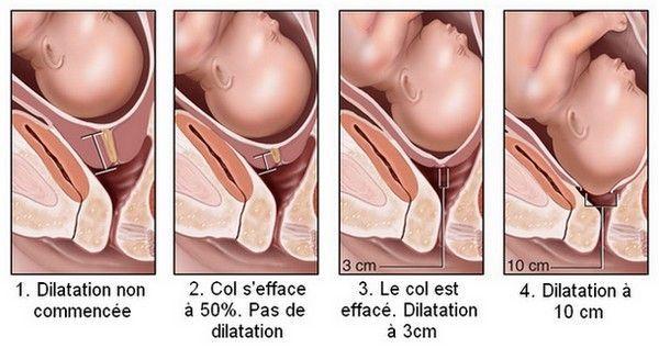 La dilatation du col de l'utérus - Grossesse/Maternité - Accouchement - Déroulement - Mamanpourlavie.com