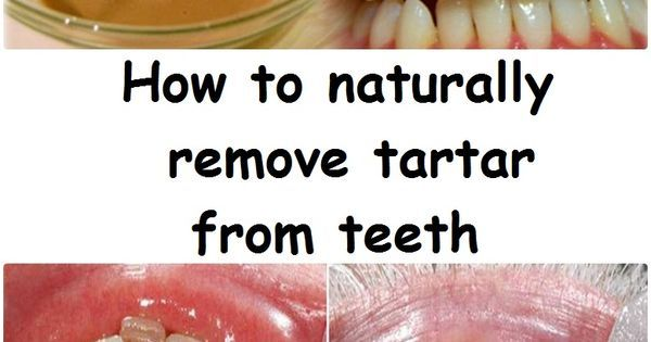 Tartar is an organo-mineral deposit met in permanent teeth temporary fixed and mobile restorations implants and orthodontic appliances. If plaque is not removed regularly affects the supportive tissue of the tooth not just the gums leading to the mobilization of affected teeth and finally their loss.