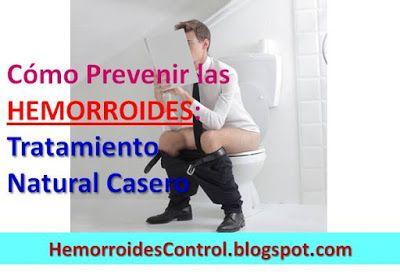 Cómo Prevenir las Hemorroides Externas: Tratamiento Prevención y Curas Naturales caseras