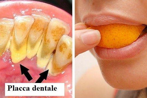 I 5 rimedi naturali più efficaci per eliminare la placca dentale