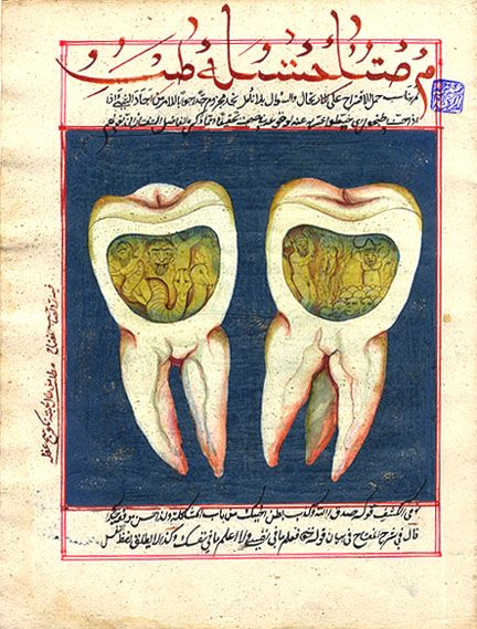 18th century hand-illustrated page from an Ottoman dental book showing molars infected with toothworms. As early as Babylonian times and lasting well into the 18 century, it was thought that a toothache was caused by worms (the theory was disproved by Jacob Christian Schaffer in 1757).