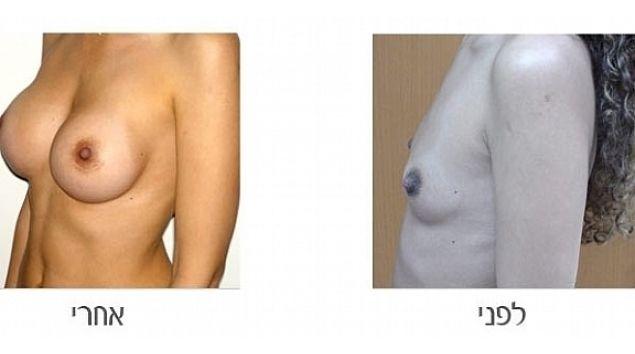 תמונות לפני אחרי הגדלת חזה