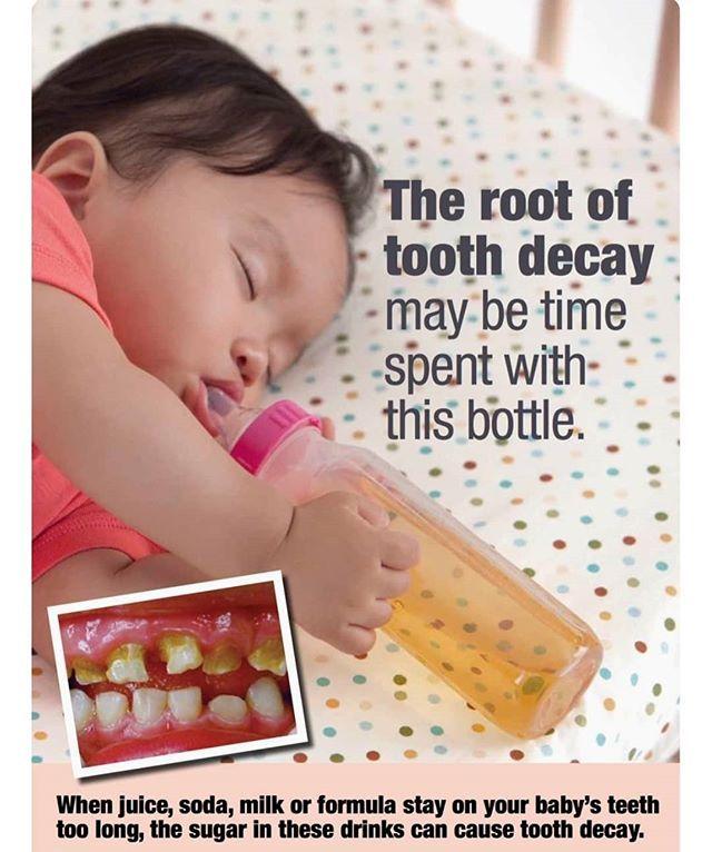 من اسباب تسوس اسنان الاطفال اطفال اسنان تسوس تسوس الأسنان عرعر عرعرنا عرعر سوق عرعر ستي Tooth Decay Baby Teeth Dental