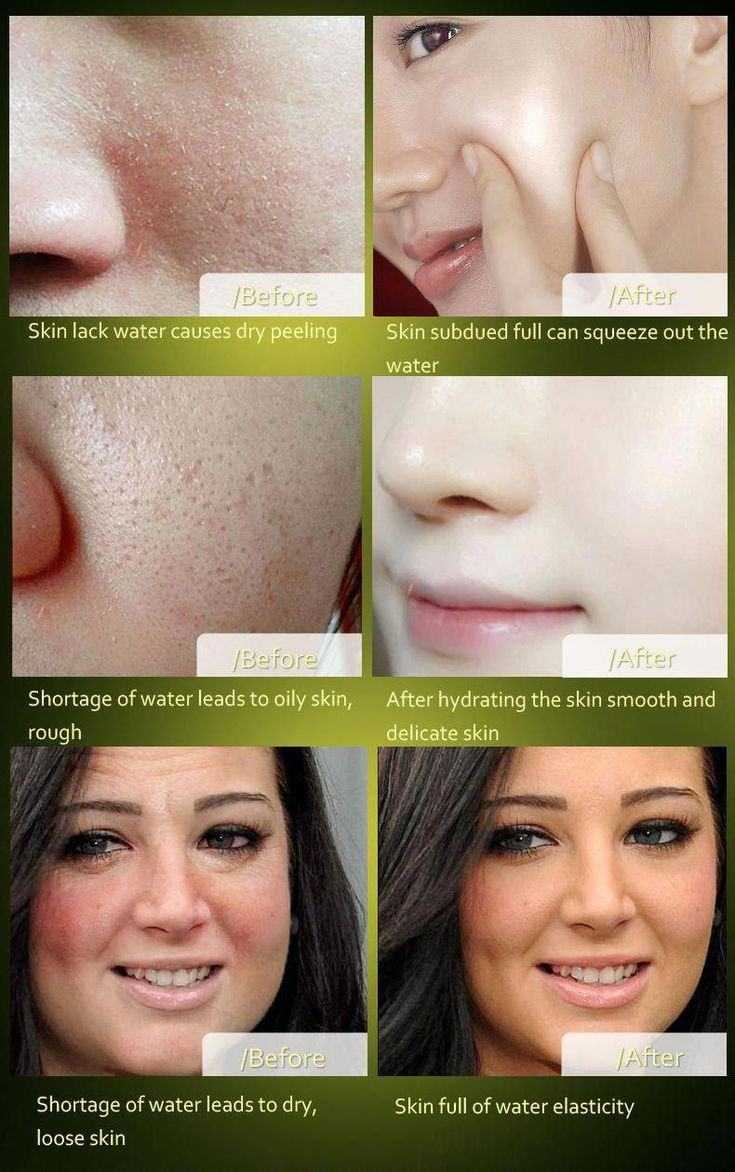 How to get rid of brown spots on deal with