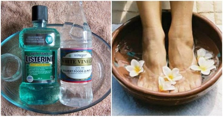 Listerine Foot Soak: Everything You Need to Know! | Ritely