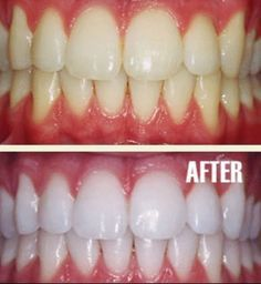BEST Teeth Whitening Homemade Product Works Wonders! Make your teeth snow white in 2 weeks! Put a tiny bit of your favorite toothpaste into a small cup (I use Crest Pro-Health Clinical Plaque Control), mix in 1 teaspoon baking  soda + 1 teaspoon hydrogen peroxide  ½ teaspoon water. Mix well then brush your #teeth for 2 minutes. Do it once a week until you have reached the results you want. Once your teeth are whitened, limit yourself to using the #whitening treatment once every 1-2 months.