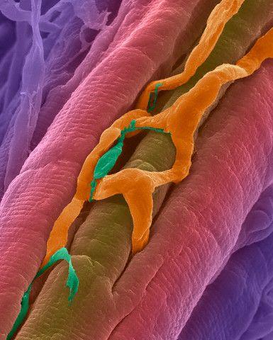 Мышечное волокно сердца вместе с питающим его капилляром и волокном Пуркинье. Волокна Пуркинье входят в проводящую систему сердца, обеспечивая ритмику сокращений. (Фото Dennis Kunkel Microscopy, Inc. / Visuals Unlimited / Corbis.)
