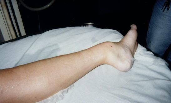Dislocated ankle      OUCH !!