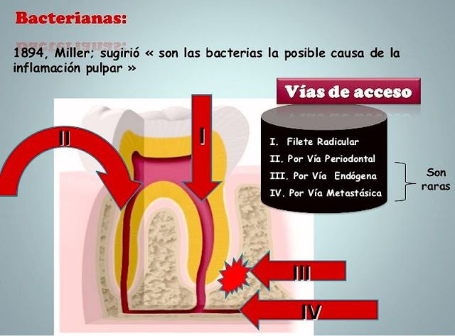 ENDODONCIA: Diagnóstico y Tratamiento de la Inflamación Pulpar   Ovi Dental