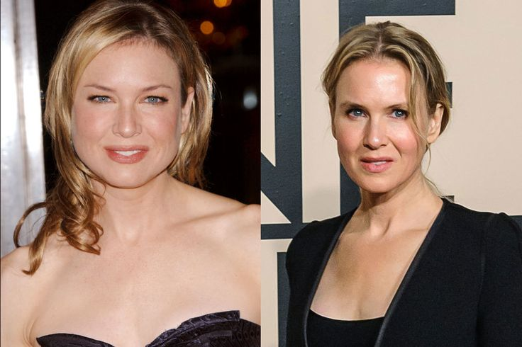 Sobre Renée Zellweger y otros cambios de imagen drásticos de Hollywood