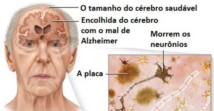 5 Conselhos para prevenir o mal de Alzheimer