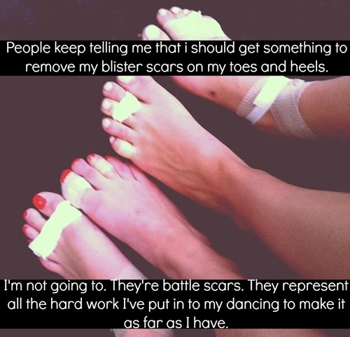 Poor Kenzie...Between Ballet, Pointe, Jazz, Lyrical, High Voltage & Show Choir dance has her toes looking like this these days...She can tape them up, like nobody I've ever known...Especially after Pointe;)...