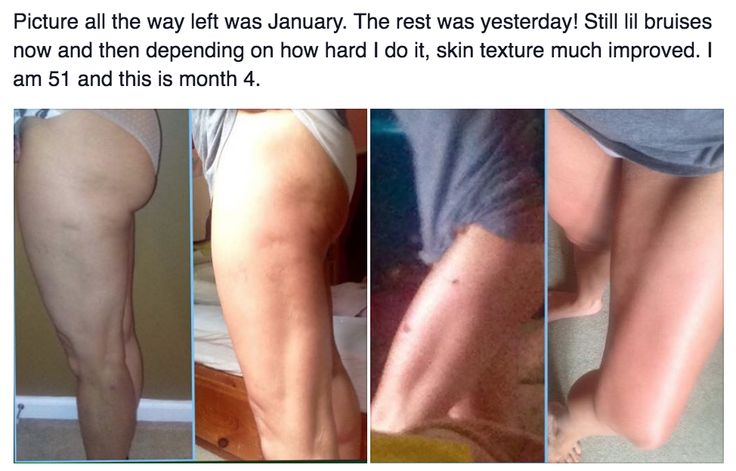 So much improvement here! LADIES – there's NO reason to put up with lumps, dents and dimples! It's NOT something you have to accept with age or even weight gain or pregnancy; it's a FASCIAL DISTORTION that can be FIXED with the FasciaBlaster! www.FasciaBlaster.com
