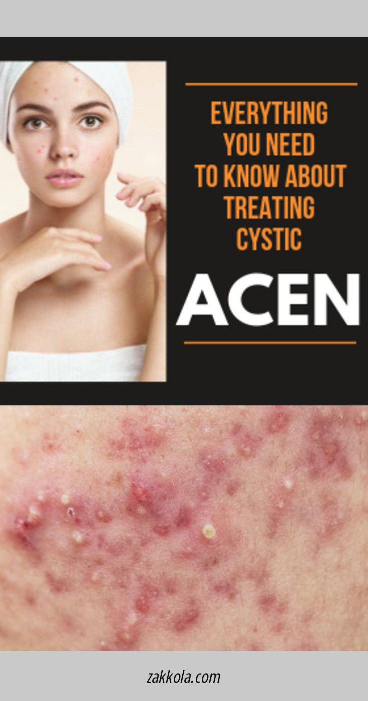 Want to know more about acne. Please click here t…